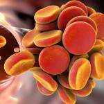 Aterotrombosis